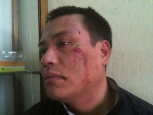 Nguyen Chi Duc displays his wounded face following an ambush by unidentified assailants, April 9, 2013. Photo courtesy of Blog Teu