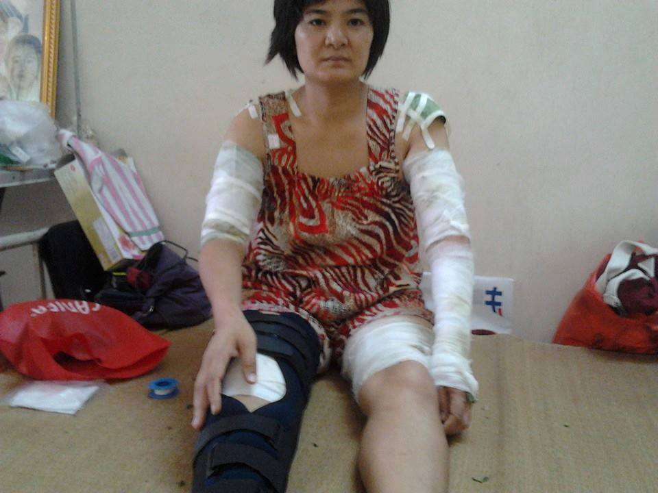 Ms Tran Thi Nga was beaten up savagely by undercover policemen pretending to be gang members