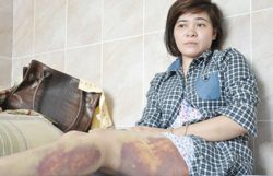 Ms. Thu with injured legs in hospital several days after being tortured by policeman Ly Hong Van