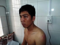 Victim Ninh is under medical treatment for injuries caused by police in Hong Hoa commune