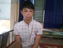 Victim Nguyen Duc Phu still weak after two days under medical treatment.