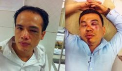 Lawyer Luan (left) and lawyer Nam (right) after being attacked by Chuong My district thugs