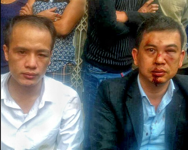 Lawyers Le Van Luan (L) and Tran Thu Nam (R) after being attacked in Hanoi, Nov. 3, 2015.