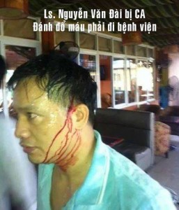 Mr. Nguyen Van Dai attacked with glass by thugs in Hanoi in 2014