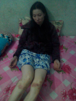 Vietnam: Wife of detained pastor 'beaten and tortured' by local authorities
