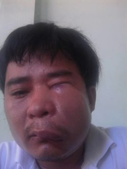 Actitivst Nguyen Van Thanh beaten by police in Danang City on June 5, 2016