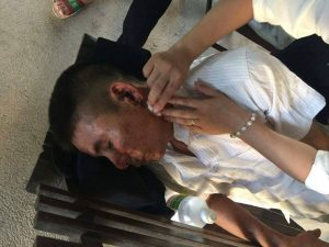 Pro-democracy activist Nguyen Trung Truc was beaten by plain clothes agents in Nghe An on July 10, 2016