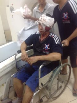 Mr. La Viet Dung is hospitalized after beaten by Hanoi security agents on July 10, 2016