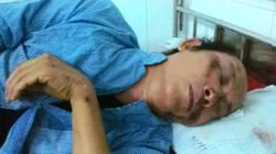Retired teacher To Oanh is hospitalized after the attack on July 13, 2016