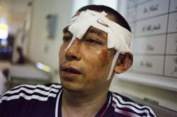 Vietnamese activist La Viet Dung is shown after being beaten by unidentified attackers, July 11, 2016. AFP