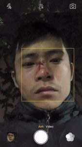 Blogger Dinh Hong Quyen with broken nose after being assaulted by plainclothes agents