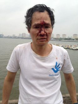 Two Hanoi-based Activists Beaten While Holding Facebook Live Stream about Formosa